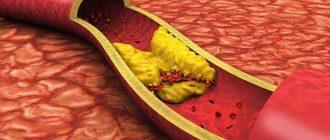 Атеросклероз поражает сосуды, преимущественно артерии