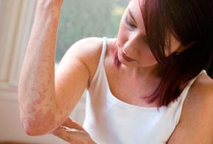 Токсикодермия – поражение кожи аллергической этиологии
