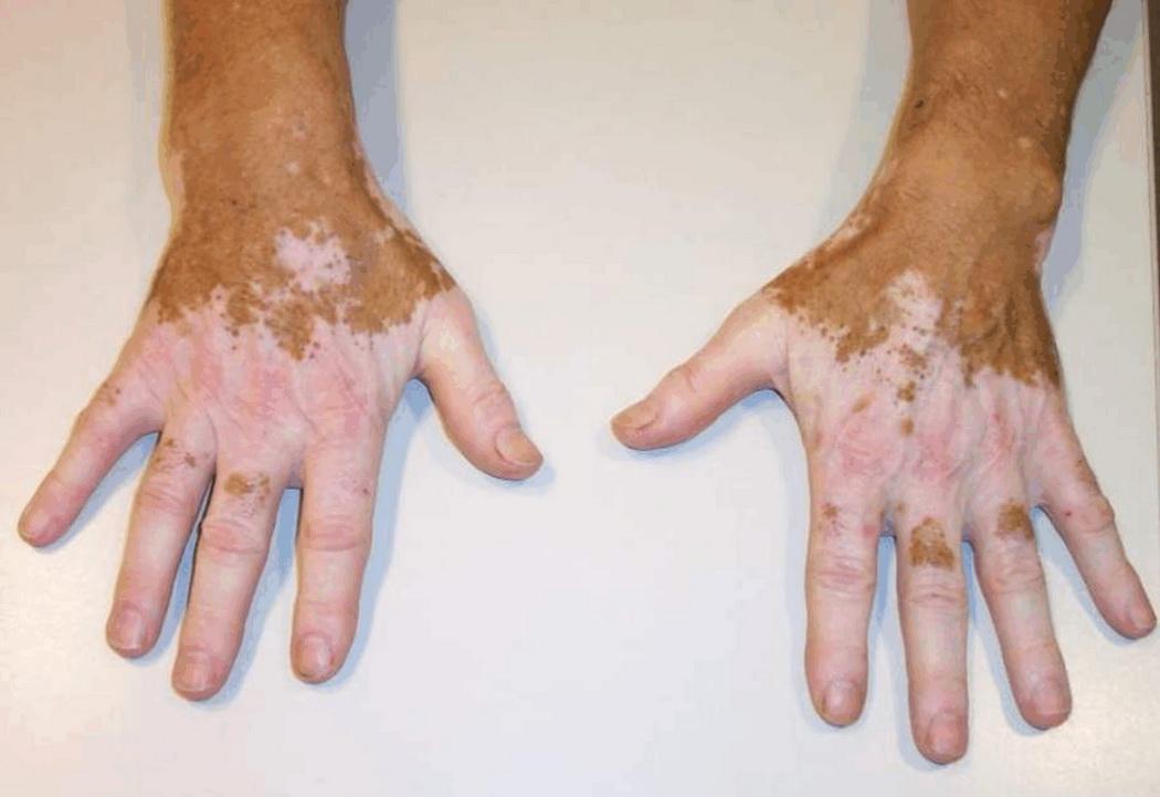 Белые пятна на коже называются витилиго