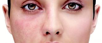 Гнойничковые заболевания кожи