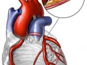 Факторы риска (атеросклероз)
