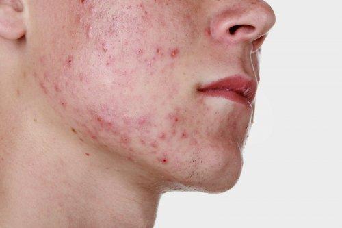 Актиномикоз кожи