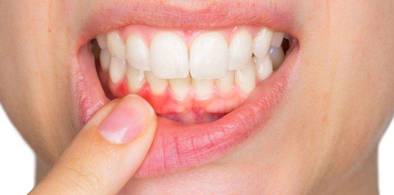 Способы исследования полости рта