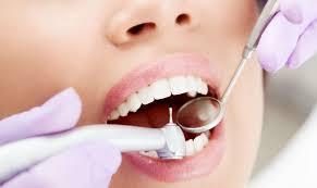 Как развивается кариес зуба