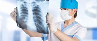 мифы о туберкулезе